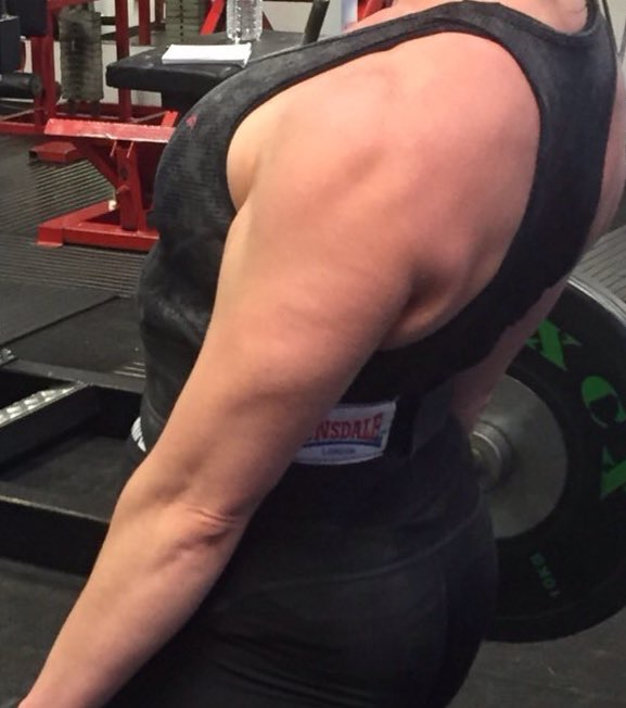 triceps websize
